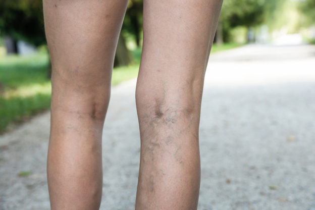 Painful varicose and spider veins on womans legs who is active and working out self-helping herself in overcoming the pain. Vascular disease varicose veins problems active life, what causes varicose veins, how to get rid of varicose veins, do varicose vein creams work, varicose veins and blood clots, what is venuous insufficiency, do varicose veins cause peripheral artery disease, why should I use compression stockings, are there any supplements for varicose veins