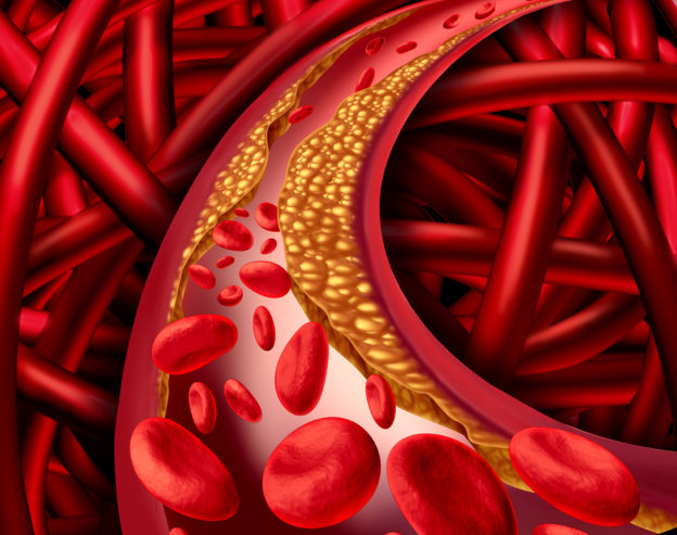 how to avoid clogged arteries, how to help unclog blood vessels, arterial health, how to take good care of your heart, cholesterol tests, LDL, HDL, must have lipoprotein tests